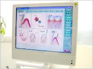 歯周病治療イメージ